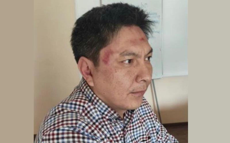 Вынесен приговор по делу о нападении на журналиста Болота Темирова